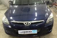 Hyundai i30 2009 замена передней рамки радиатора, ремонт и покраска переднего левого крыла, замена передней левой фары, замена и покраска переднего бампера